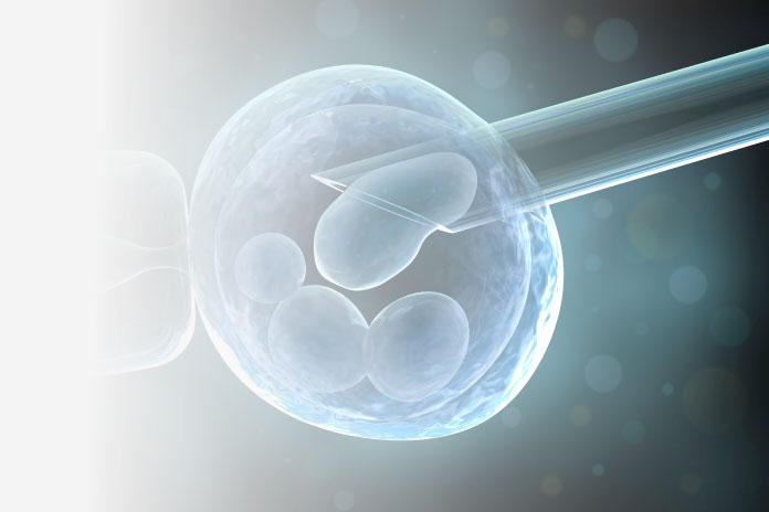 Advanced Fertility Treatment Preimplantation Genetic Diagnosis