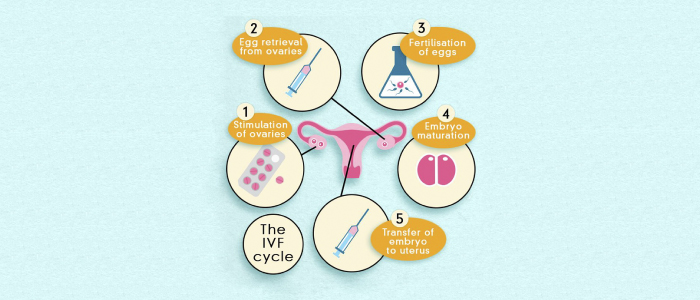 Best IVF Centres in Bangalore
